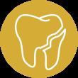 Broken tooth2